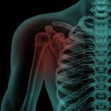 Μπροστινή των ακτίνων X άποψη του ανθρώπινου επίπονου ώμου Στοκ Εικόνα