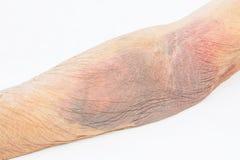 Μωλωπισμός από το αίμα στοκ φωτογραφίες με δικαίωμα ελεύθερης χρήσης