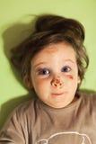 Μωρό με τους μώλωπες στοκ φωτογραφίες