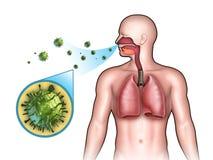 μόλυνση προερχόμενη από ιό Στοκ φωτογραφία με δικαίωμα ελεύθερης χρήσης
