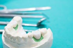 Μόσχευμα και prosrthodontic πρότυπο Στοκ φωτογραφία με δικαίωμα ελεύθερης χρήσης