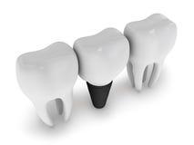 Μόσχευμα δοντιών Στοκ Φωτογραφίες