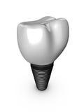 Μόσχευμα δοντιών Στοκ εικόνα με δικαίωμα ελεύθερης χρήσης