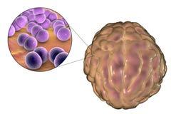 Μόλυνση μηνιγγίτιδας που προκαλείται από τα βακτηρίδια Στοκ εικόνες με δικαίωμα ελεύθερης χρήσης