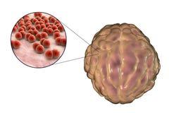 Μόλυνση μηνιγγίτιδας που προκαλείται από τα βακτηρίδια Στοκ Φωτογραφία