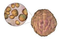 Μόλυνση μηνιγγίτιδας που προκαλείται από Cryptococcus μυκήτων neoformans Στοκ Φωτογραφία