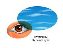 Μύγες πριν από τα μάτια σύμπτωμα των ασθενειών ματιών απεικόνιση αποθεμάτων