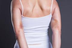 Μώλωπες σε ετοιμότητα της γυναίκας, όπλα με το εκτενές αιμάτωμα στοκ εικόνα