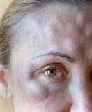 Μώλωπες από τα τσιμπήματα στο πρόσωπο μιας γυναίκας στοκ φωτογραφία