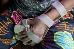 Νάρθηκας βραχιόνων για την επεξεργασία στοκ φωτογραφίες