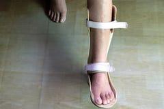 Νάρθηκας ποδιών για την επεξεργασία στοκ εικόνες με δικαίωμα ελεύθερης χρήσης