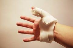 νάρθηκας χεριών που φορά τ&omic Στοκ φωτογραφία με δικαίωμα ελεύθερης χρήσης