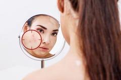 Νέα γυναίκα με το δέρμα ακμής στον κόκκινο στόχο στοκ εικόνα με δικαίωμα ελεύθερης χρήσης