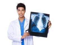 Νέα εκμετάλλευση γιατρών με την των ακτίνων X ταινία Στοκ εικόνα με δικαίωμα ελεύθερης χρήσης