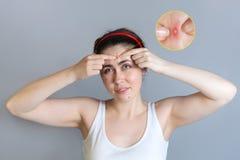 Νέα χαριτωμένα σπυράκια συμπιέσεων brunette στο μέτωπό της Η έννοια cosmetology και του ελέγχου ακμής, εφηβεία Διευρυμένος στοκ φωτογραφίες