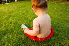 Νέος - γεννημένος με τα πολλαπλάσια δαγκώματα κουνουπιών Αλλεργία στα δαγκώματα εντόμων στοκ εικόνες με δικαίωμα ελεύθερης χρήσης