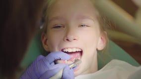 Νέο κορίτσι που έχει τα δόντια της καθορισμένων στον οδοντίατρο ` s Καθαρισμός τερηδόνων Ο οδοντίατρος βουρτσίζει τα δόντια του μ φιλμ μικρού μήκους