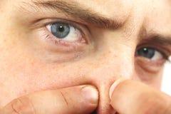 Νεαρός άνδρας πορτρέτου κινηματογραφήσεων σε πρώτο πλάνο που εξετάζει τη κάμερα, συμπιέζοντας την ακμή ή τα σπυράκια στη μύτη Κιν στοκ εικόνα