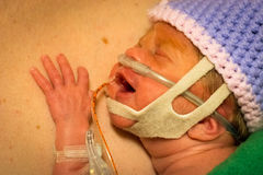 Νεογέννητο δέρμα κοριτσιών Preemie που ξεφλουδίζει με τον μπαμπά Στοκ εικόνες με δικαίωμα ελεύθερης χρήσης