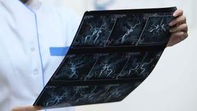 Νευρολογική ακτίνα X σκαφών εκμετάλλευσης χειρούργων, που μελετά τα αποτελέσματα πριν από τη χειρουργική επέμβαση απόθεμα βίντεο