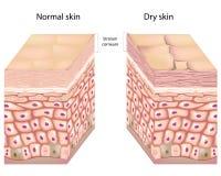 Ξηρό δέρμα απεικόνιση αποθεμάτων