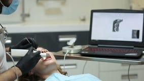 Οδοντίατρος που ανιχνεύει τα δόντια του ασθενή με έναν ανιχνευτή δ απόθεμα βίντεο