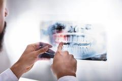 Οδοντίατρος που εξετάζει την ακτίνα X δοντιών στοκ εικόνα