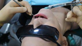 Οδοντίατρος που κάνει την έγχυση στον ασθενή του στην οδοντική κλινική Κλείστε επάνω του οδοντιάτρου που κάνει την έγχυση αναισθη απόθεμα βίντεο