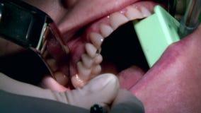 Οδοντίατρος που χρησιμοποιεί τις χειρουργικές πένσες για να αφαιρέσει ένα αποσυντιθειμένος δόντι απόθεμα βίντεο