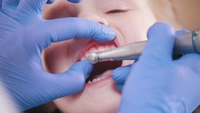 οδοντιατρική  κλείστε επάνω απόθεμα βίντεο