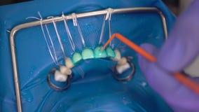 Οδοντιατρική κλινικών, εγκατάσταση των καπλαμάδων στον ασθενή στην οδοντική κλινική Όμορφα δόντια γιατρών οδοντιάτρων, χαμόγελο κ απόθεμα βίντεο