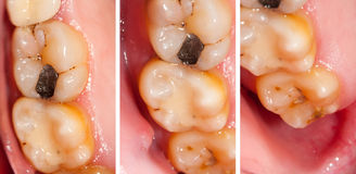οδοντικά προβλήματα Στοκ εικόνες με δικαίωμα ελεύθερης χρήσης