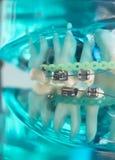 Οδοντικά υποστηρίγματα μετάλλων δοντιών Στοκ Εικόνες