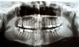 Οδοντική ακτίνα X Στοκ φωτογραφία με δικαίωμα ελεύθερης χρήσης