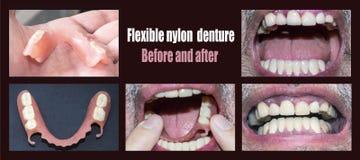 Οδοντική αποκατάσταση με την ανώτερη και χαμηλότερη πρόσθεση, πριν και μετά από την επεξεργασία στοκ φωτογραφία