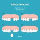 Οδοντική αφίσα Αφίσα οδοντιατρικής και στοματολογίας Ενιαίο μόσχευμα Στοκ εικόνα με δικαίωμα ελεύθερης χρήσης