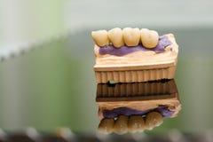 Οδοντική γέφυρα φιαγμένη από πορσελάνη στη ρίψη Στοκ Εικόνες