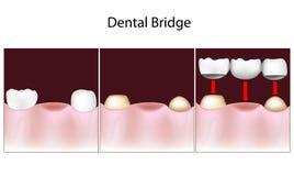 Οδοντική διαδικασία γεφυρών διανυσματική απεικόνιση