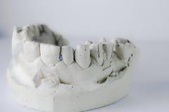οδοντική διαμόρφωση Στοκ εικόνες με δικαίωμα ελεύθερης χρήσης