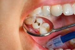 Οδοντική επεξεργασία στην οδοντική κλινική Σάπια τερηδονισμένη μακροεντολή δοντιών Τ στοκ φωτογραφία με δικαίωμα ελεύθερης χρήσης