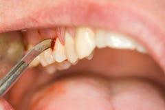 οδοντική επεξεργασία Στοκ φωτογραφία με δικαίωμα ελεύθερης χρήσης