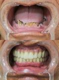 Οδοντική επισκευή - πλήρης οδοντική γέφυρα στα οδοντικά μοσχεύματα στοκ φωτογραφία