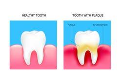 Οδοντική πινακίδα με την ανάφλεξη και το υγιές δόντι ελεύθερη απεικόνιση δικαιώματος