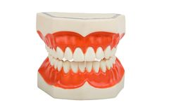 οδοντική πρόσθεση οδοντοστοιχιών Στοκ εικόνες με δικαίωμα ελεύθερης χρήσης