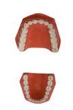 οδοντική πρόσθεση οδοντ& Στοκ εικόνες με δικαίωμα ελεύθερης χρήσης