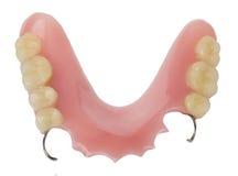 οδοντική πρόσθεση Στοκ φωτογραφία με δικαίωμα ελεύθερης χρήσης