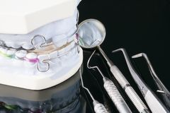 Οδοντική orthodontic συσκευή υπηρετών στοκ φωτογραφία με δικαίωμα ελεύθερης χρήσης
