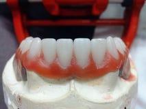 Οδοντικός τεχνικός στην εργασία στοκ εικόνα