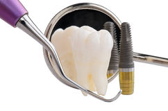 Οδοντικό μόσχευμα Στοκ Εικόνα
