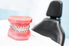 Οδοντικό πρότυπο με τα στηρίγματα - στην κλινική ή orthodontics οδοντιάτρων στοκ εικόνες